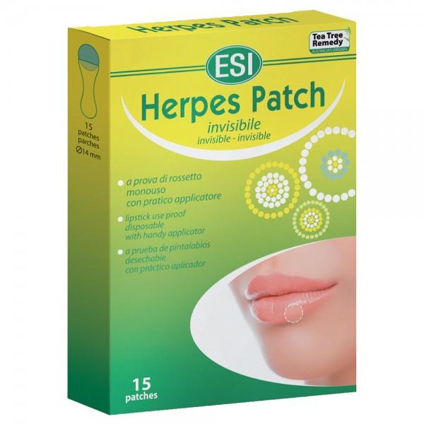 Herpes pacht 15 minipacht